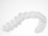 ציפוי פלסטיק שקוף בטכנולוגיית EXCEED