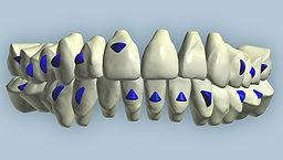 יישור שיניים הדמיית תלת מימד