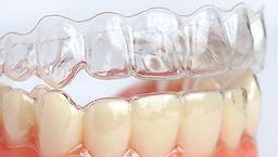 יישור שיניים ללא סמכים