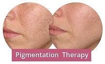 Pigmetation therapy