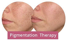 Pigmetation therapy