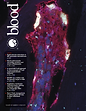 m_bloodjournal_133_21_cover.png