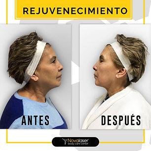 Rejuvenecimiento Facial antes y despúes