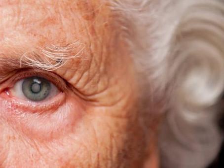 Justiça condena Sassepe a autorizar cirurgia em idosa com catarata