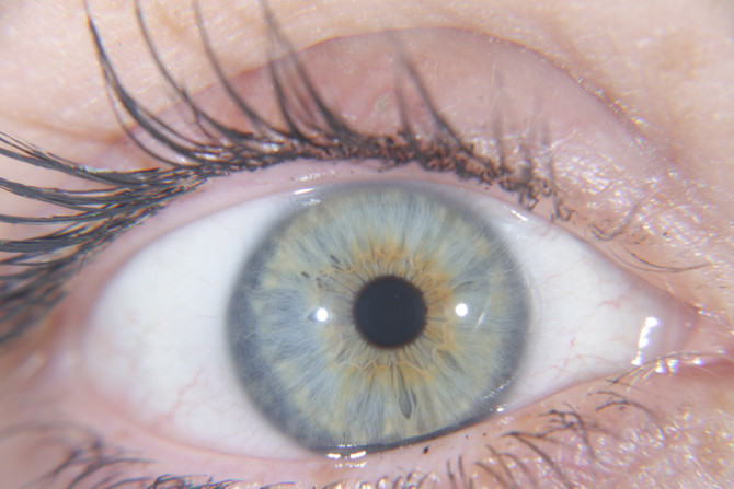 IRIDOLOGY how it can help you!