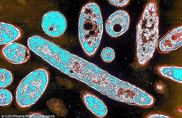 Man in his 80s the fifth person to be diagnosed with Legionnaires' disease in deadly Sydney outbreak