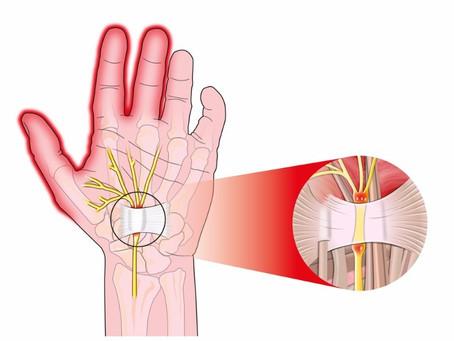 Pour votre syndrome du canal carpien, pensez ostéopathie avant la chirurgie