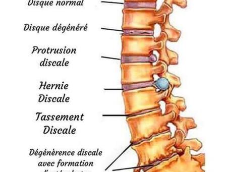 Les pathologies liées à l'usure de la colonne vertébrale