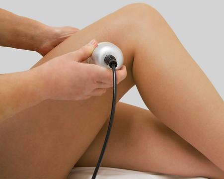 Tratamiento cavitacion grasa corporal