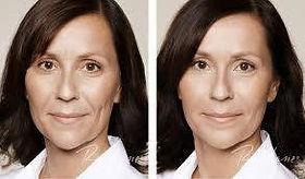 bioplastia facial acido hialurónico