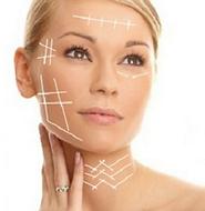 Hilos facial piel lifting