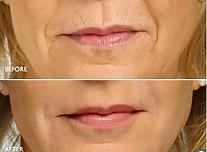 bioplastia labios acido hialurónico