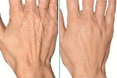 rejuvenecimiento manos hialurónico