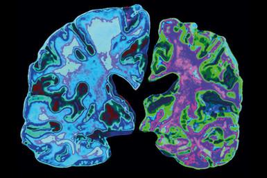 Revolutionary Progress In Curing Alzheimer's Disease