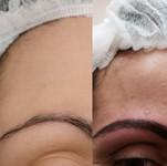 microbleding poil à poil