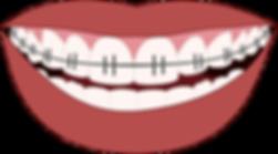 orthodontics-3109763_1280.png