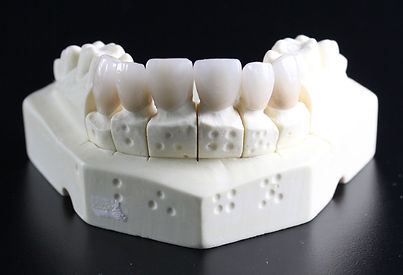 tooth-replacement-759929_1920.jpg