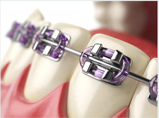 ortodonti.png