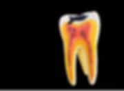 endodonti.png
