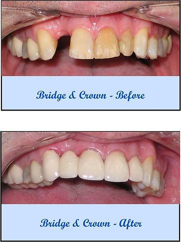 BridgeCrown-BeforeAfter.jpg