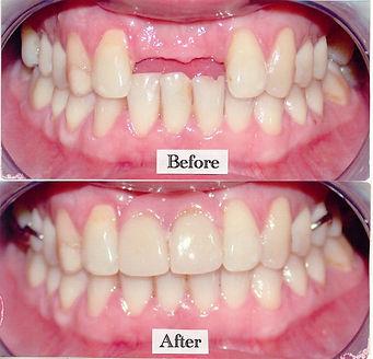 Denture-beforeafter.jpg