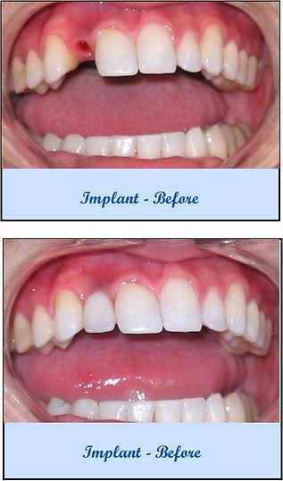 Implant-BeforeAfter.jpg