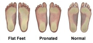 Understanding Your Foot Type & How It Affects You