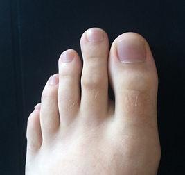 Foot Dry Needling