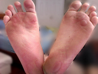 Foot Blisters