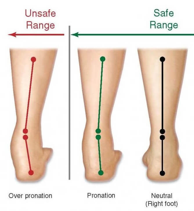 Flat Feet / Excessive Pronation