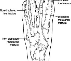 Foot Stress Fracture Prevention
