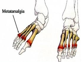 Understanding Metatarsalgia
