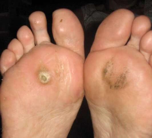 Verruca foot sole - Verruca foot sole