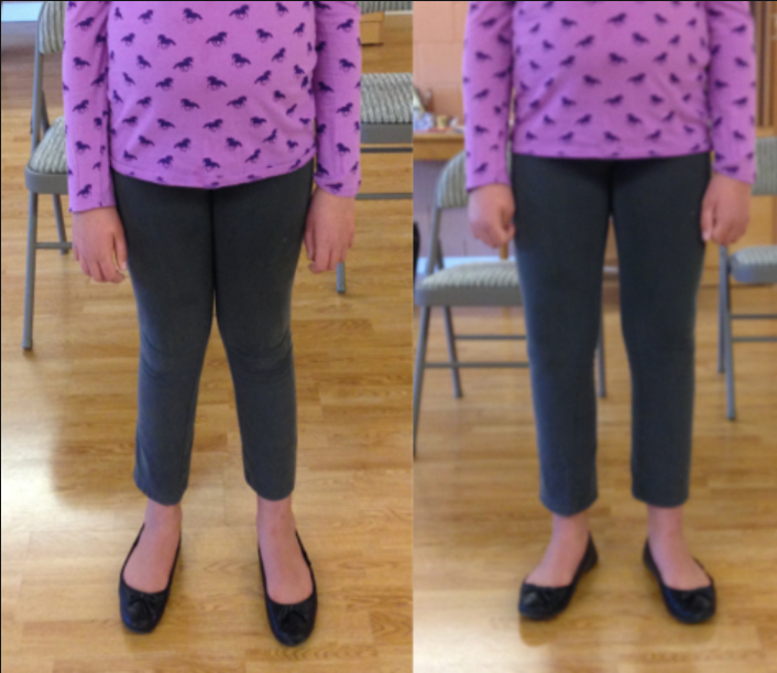 Leg adjustment