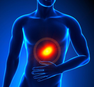 El mal de reflujo gastroesofágico