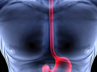 Se reportan números significativos de cáncer de esófago