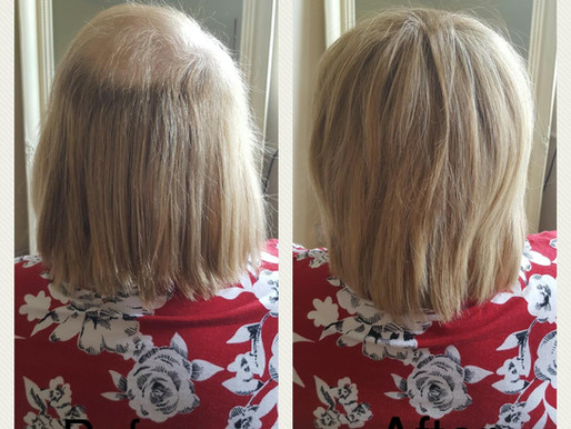 What are the benefits of my Hairloss Service?