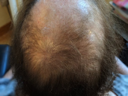 WARNING!!! Thinking of an #Intralace Mesh #Hair System or #Volumiser? Read before deciding!