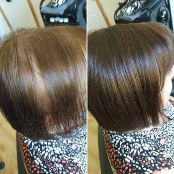 Hairloss Solution