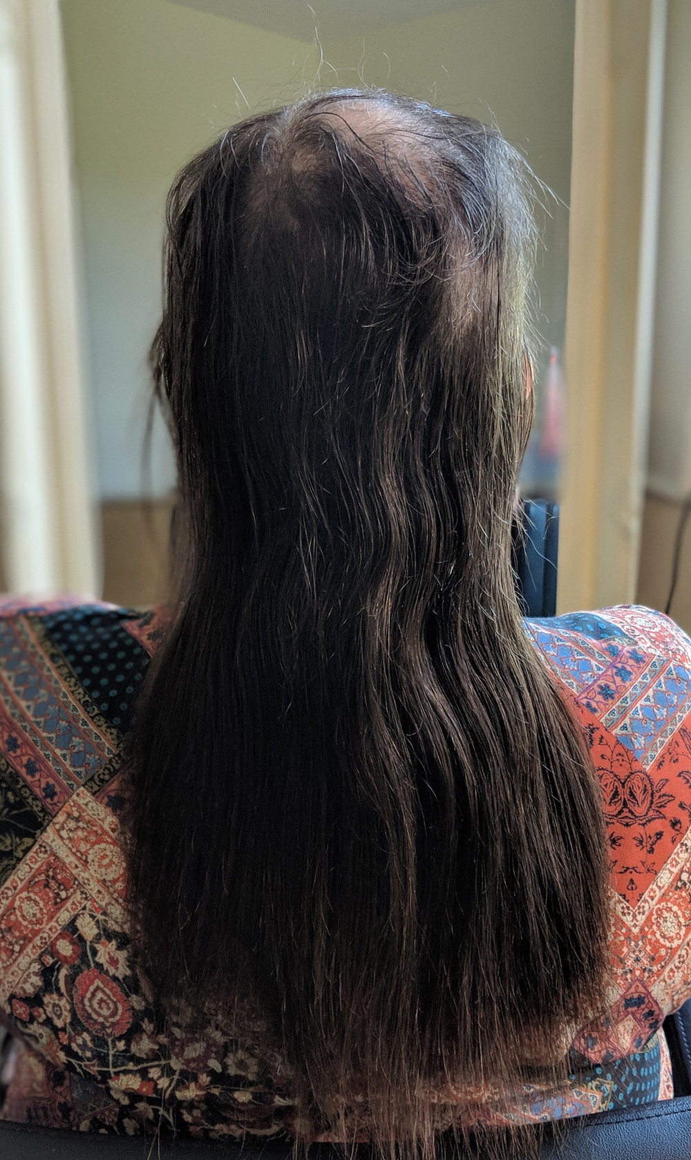 My brave client selflessly allowed me to use her image in the hope to help any other Trichotillomania sufferer's. I am in awe of her courage and of all my Hairloss client's who permit me to use their images. Love & Respect x