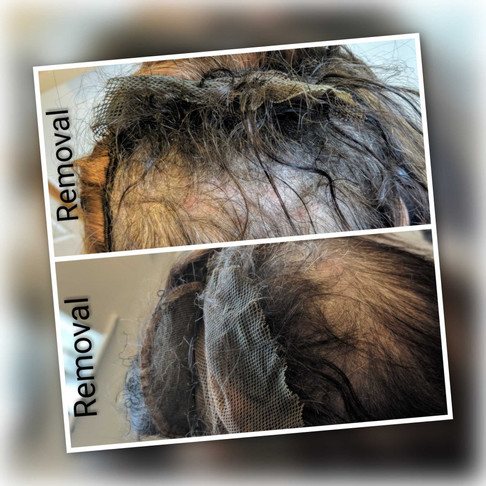Thinking of an 'Intra-Lace' Hair Replacement System? Please read before you make any decisio