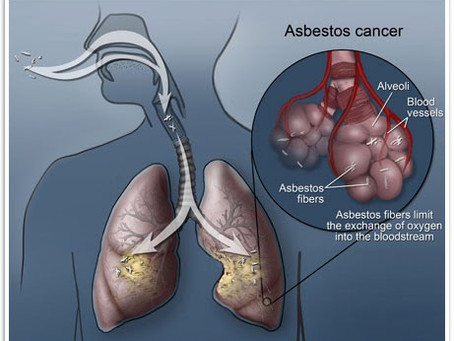 How Is Asbestos Affecting Your Health?