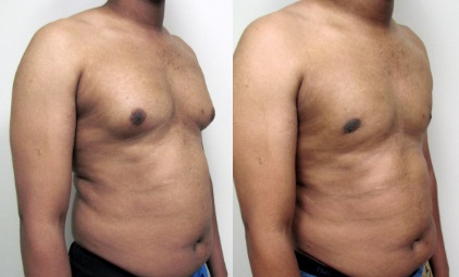 Gynecomastia-Surgery-Before-and-After-Dallas-8