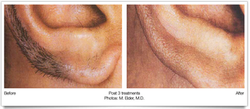 Laser Hair Removal for Ears
