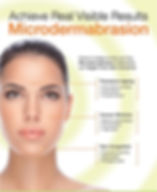 Microdermabrasion-image-SF-728x1024.jpg