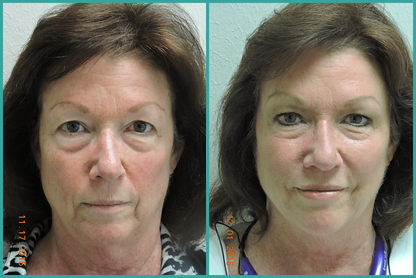 Austin-Threadlift-before-and-after-1024x