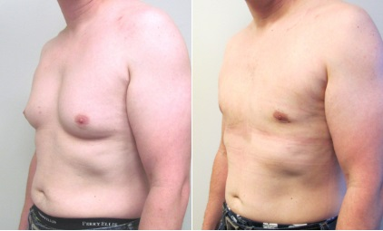 Gynecomastia-Surgery-Before-and-After-Dallas-9