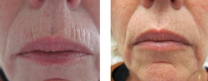 CO2RE Fractional Laser in Allentown