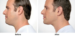 Kybella-Before-and-After-9