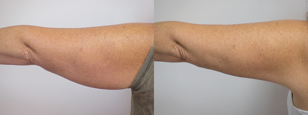 LipoLift-Arms-1